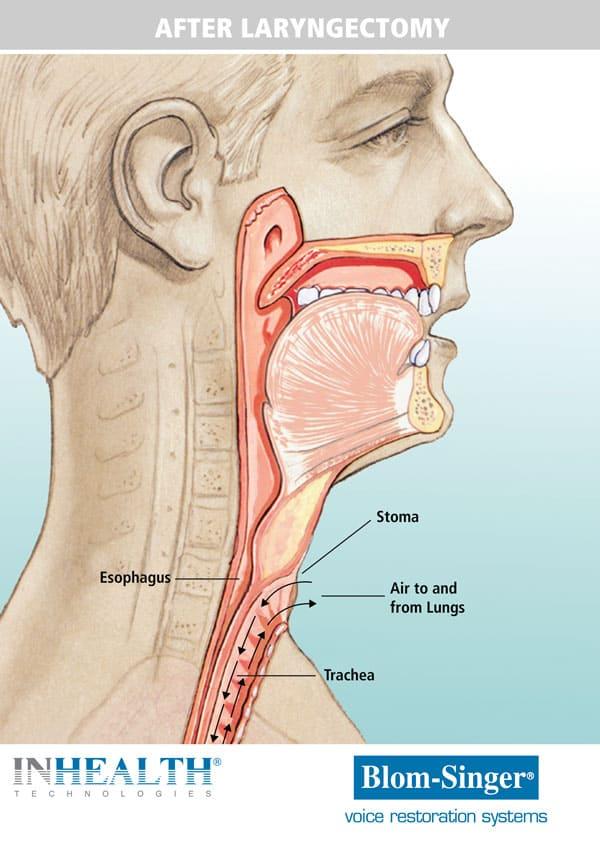 Anatomy after a larynctomy