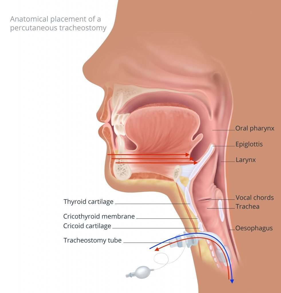 Inhalation and exhalation with tracheostomy