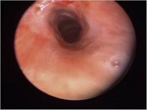 tracheal stenosis