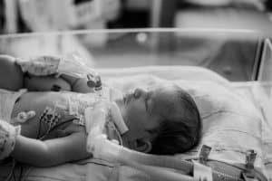 pediatric tracheostomy